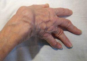 Теносиновит в пожилом возрасте