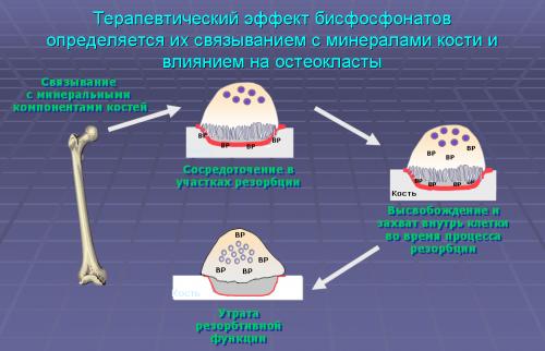 Терапевтический эффект бисфосфонатов