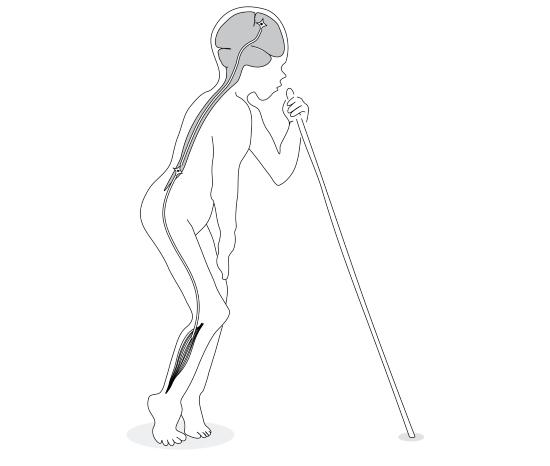 Заболевание тетрапарез