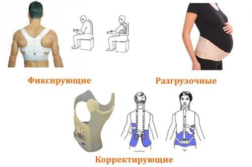 Типы бандажей для спины