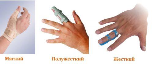 Типы ортезов на палец руки по жесткости