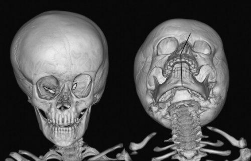 Уникоронарный синостоз костей лица на КТ