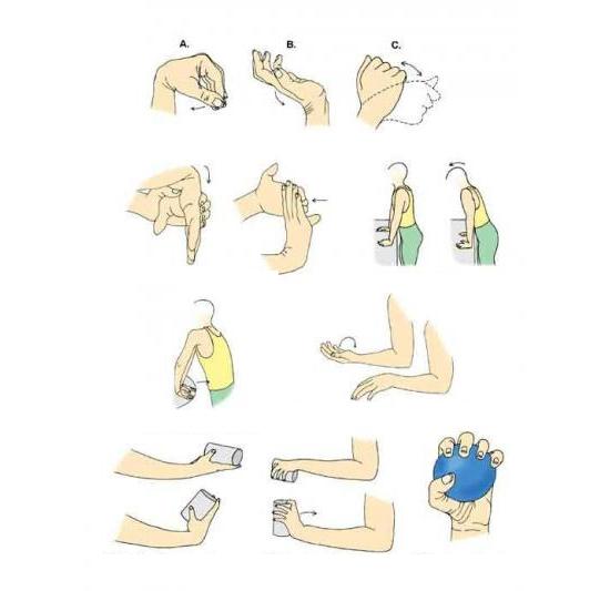 Упражнения при эпикондилите