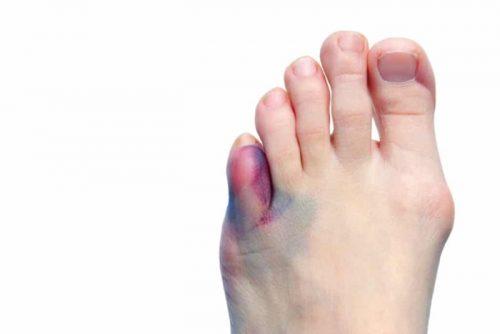 Ушибы пальцев ног