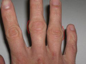 Утолщение суставов пальцев рук при артрите