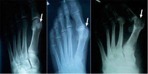 Вальгусная деформация большого пальца стопы на рентгене