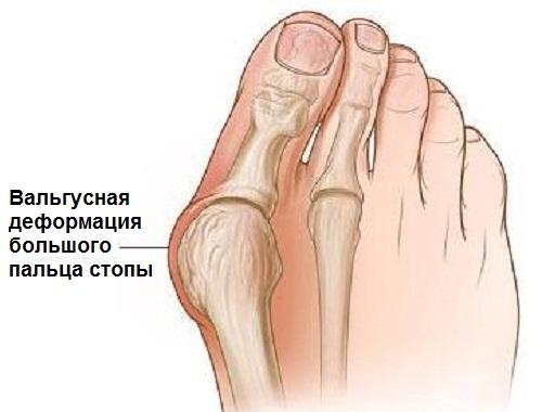 Вальгусная деформация большого пальца ноги