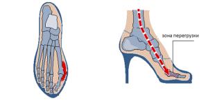 Вальгусная деформация большого пальца из-за ношения туфель на каблуке