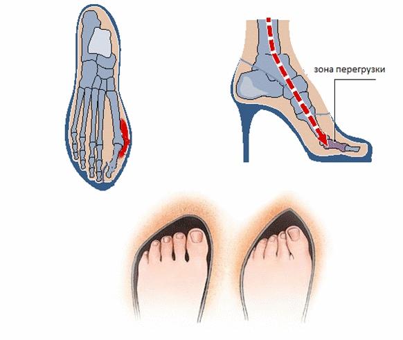 Вальгусная деформация из-за обуви