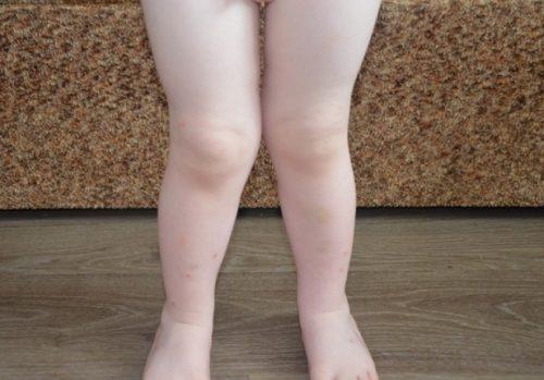 Вальгусное искривление ног у ребенка