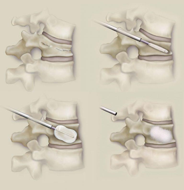 Вертебропластика при компрессионном переломе