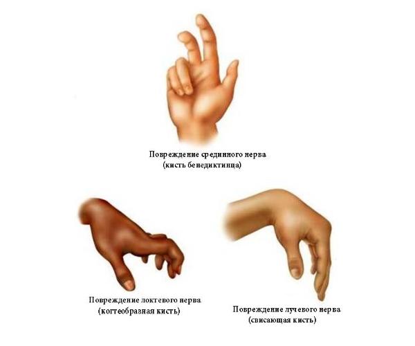 Вид кисти при поражении нервов руки