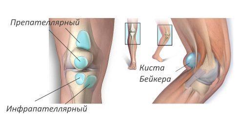 Виды бурсита коленного сустава по месту распространения