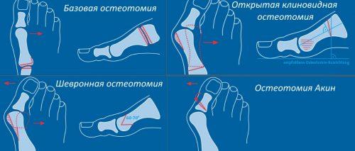 Виды остеотомии при вальгусной деформации большого пальца стопы