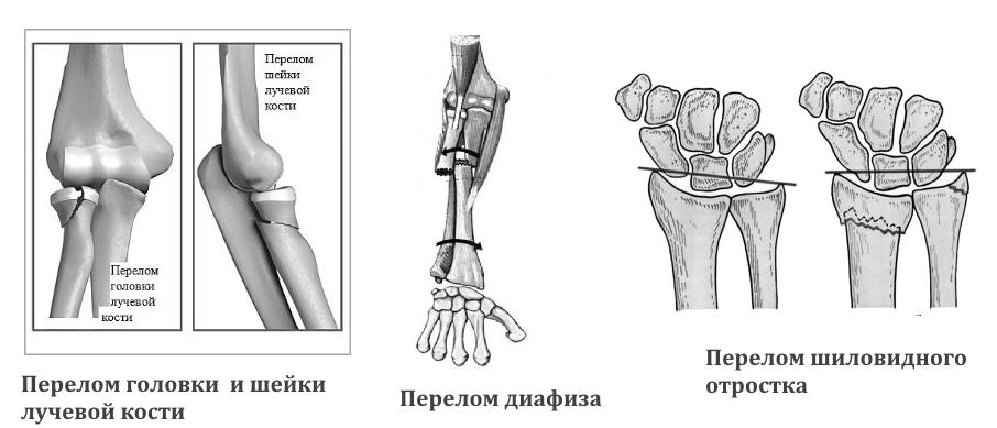 Виды переломов лучевой кости по месту расположения