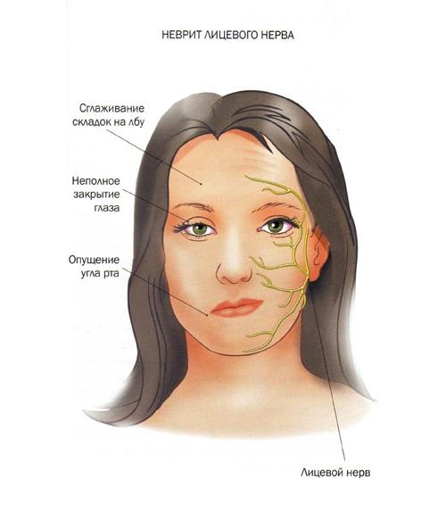 Визуальные признаки неврита лицевого нерва