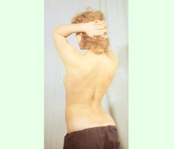 Внешний вид спины при смещении позвонков