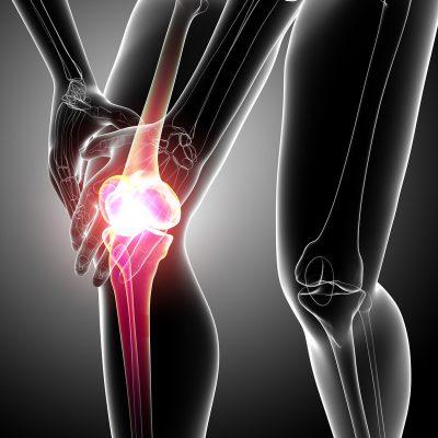 Патогенный хруст при воспалении колена