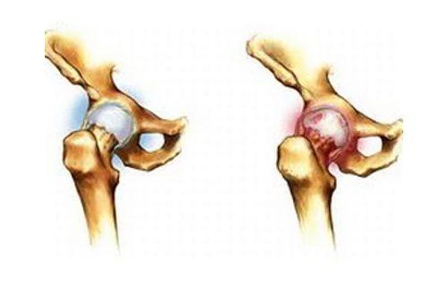 Воспаление или артрит тазобедренного сустава