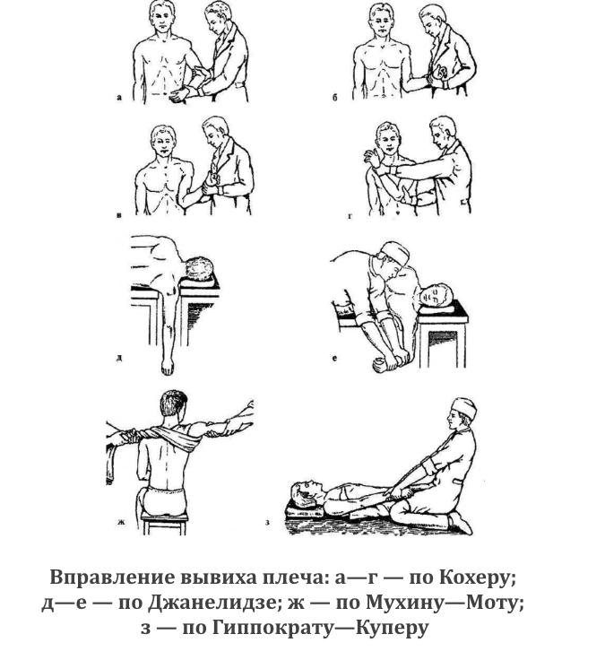 Виды вправления вывиха плеча