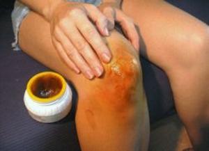 Втирание мази из корицы и мёда в больной сустав
