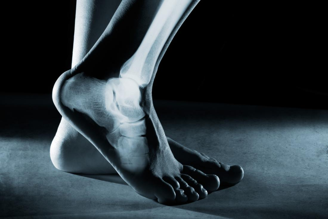 Рентген диагностика костей стопы