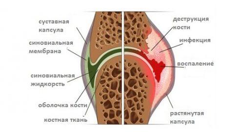Схема разрушения сустава инфекцией