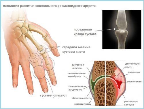Ювенильный ревматоидный артрит - болезнь Стилла