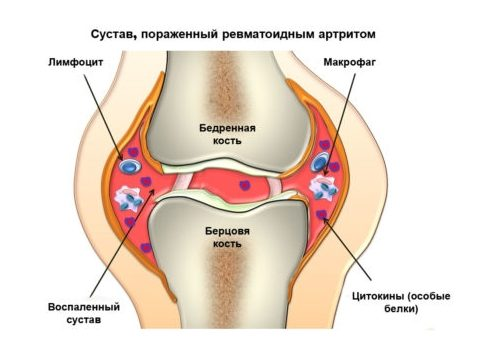 Инфекционное поражение суставов