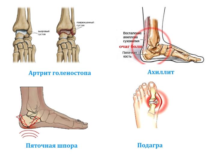 Заболевания голеностопного сустава