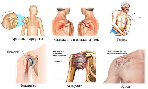 Заболевания и травмы плеча
