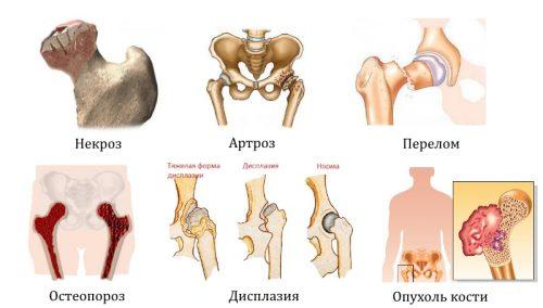 Заболевания и травмы тазобедренного сустава