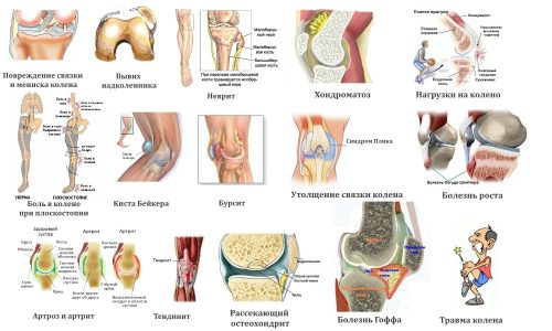 Заболевания и травмы колена