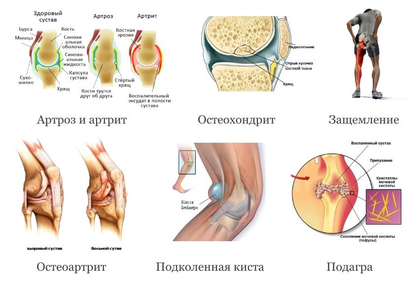 Заболевания коленного сустава