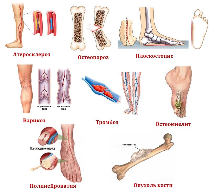 Заболевания нижних конечностей