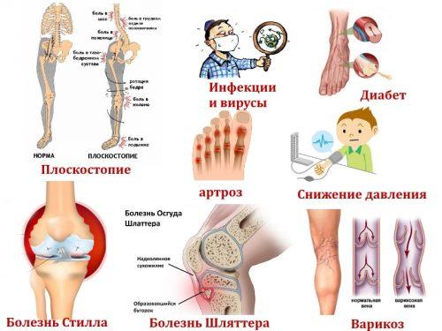Заболевания ног у детей