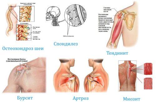 Заболевания при боли в руке