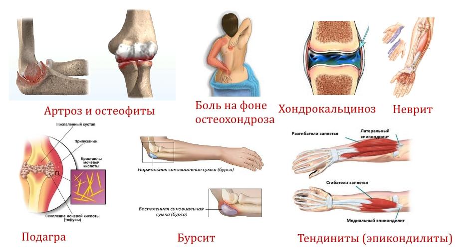 Заболевания — причины боли в локте