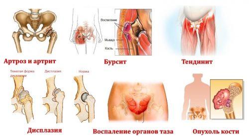 Заболевания — причины боли в области таза и ног