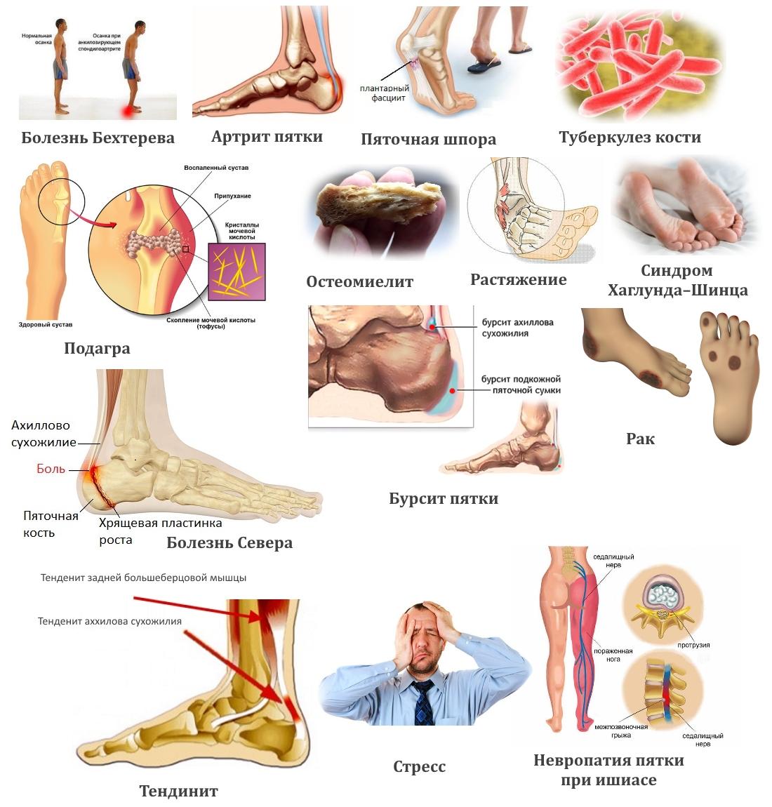 Заболевания — причины боли в пятке