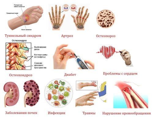 Заболевания — причины онемения рук
