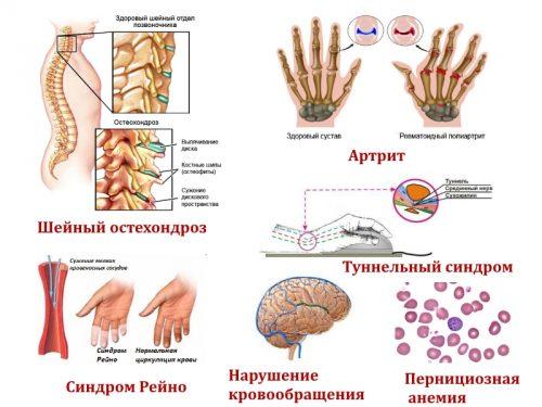 Заболевания — причины онемения указательного пальца