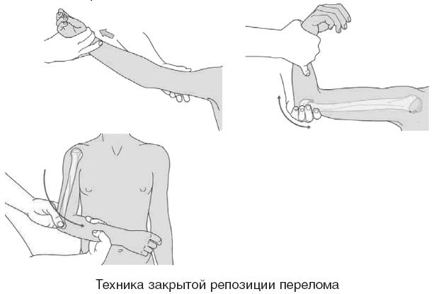 Пример закрытой репозиции перелома