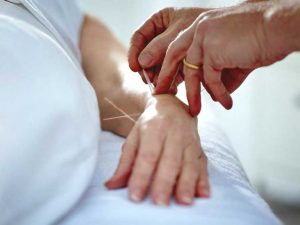 Акупунктура нервов руки