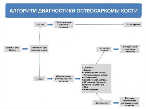 Алгоритм диагностики остеосаркомы
