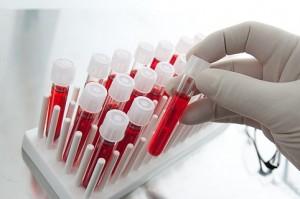 Анализ крови при для диагностики ревматоидного (аутоиммунного) артрита