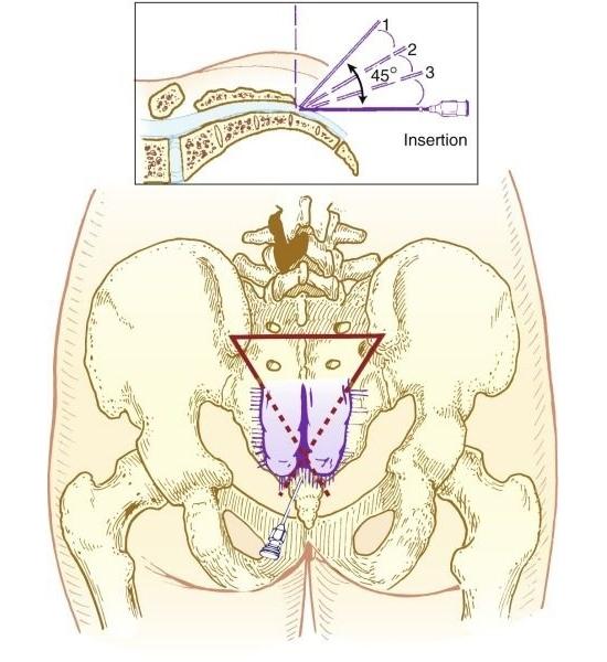 Анестезия копчика