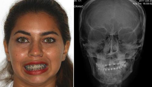 Анкилоз челюсти на рентгене