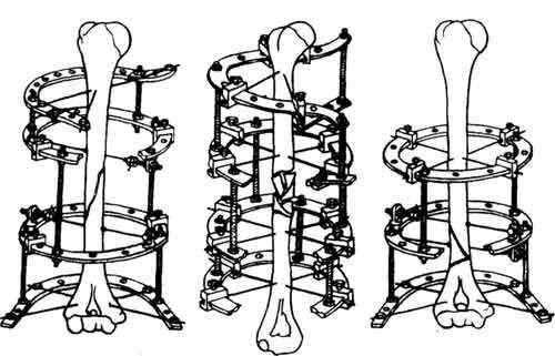 Использование аппарата при переломах