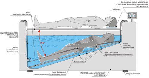 Аппаратная тракционная терапия в воде